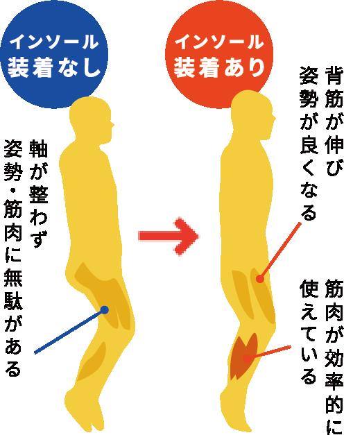インソール装着なし:軸が整わず姿勢・筋肉に無駄がある / インソール装着あり:背筋が伸び姿勢が良くなる 筋肉が効果的に使えている
